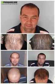 NEU! Haartransplantations- Beratung